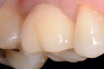 """גישה כירורגית אסתטית לטיפול בחוסר בשן בודדת קדמית ,  השתלה והתחדשות רקמות ביניים: דו""""ח מקרה עם חמש שנות מעקב"""